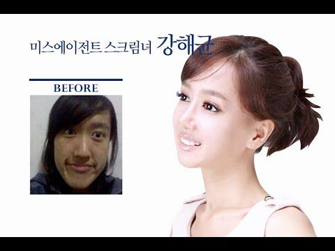【画像】ウソップそっくりな韓国女が整形でKARAみたいな美女に大変身wwwwww