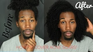 How to Cover Acne Scars Natural Makeup Tutorial for Men/Women