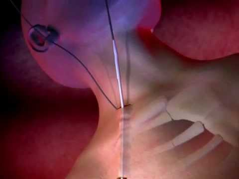 Proguide Chronic Dialysis Catheter Animation video