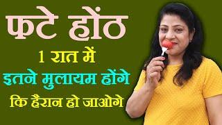 How To Heal Cracked Lips | फटे होंठ मुलायम बनाने के घरेलु नुस्खे | Dry Cracked Lips Remedy by Sonia