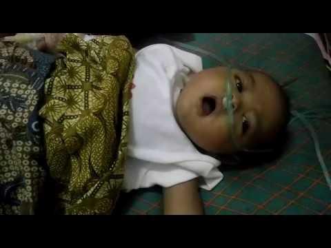 Chantiqa Anindya - artresia biliar