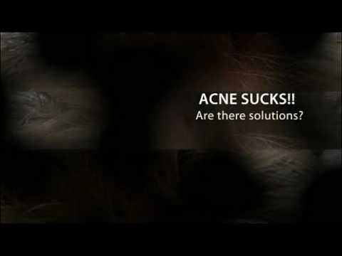 The Skinmedica Acne System - Cure Acne Now