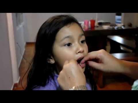 Tecnicas avanzadas para extraer un diente de leche