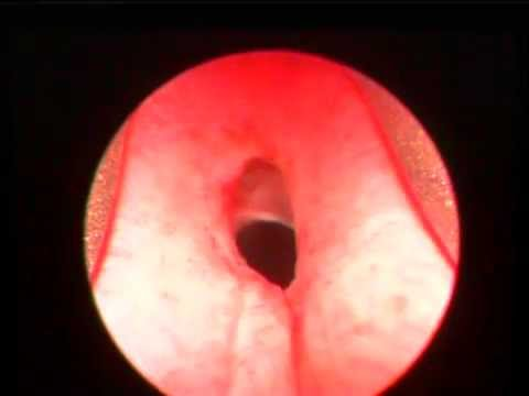 Canine Urethral Hymen   Stricture - Post Cystoscopy video