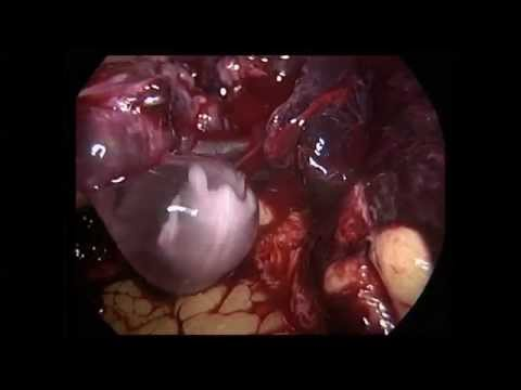 Ruptured Ectopic Pregnancy - Dr. Ashish Bhanot