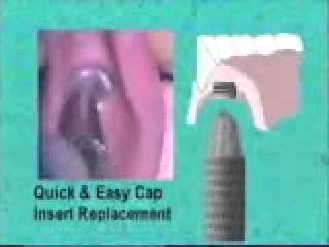 Flexi Overdenture Placement