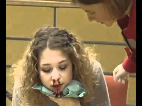 0 - Що робити при кровотечі з носа