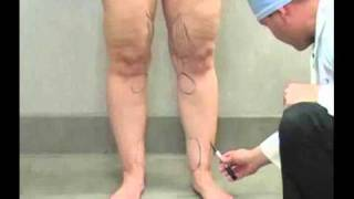 Liposuction / Lipo Procedure with Dr. William Hall - Andrea: Calves, Ankles and Knees