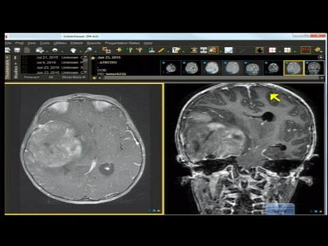 Neuro Imaging Board and Recredentialing Review 8