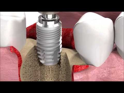 Dental Implant Procedure: SICmax implant insertion