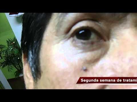 verrugas cura total remedio casero tratamiento medicina natural uriel tapia