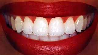 download lagu Teeth Whitening At Home In 3 Minutes  How gratis