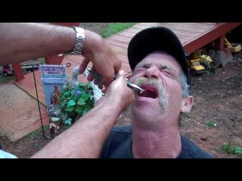 Redneck Dentist: East Texas tooth pulling