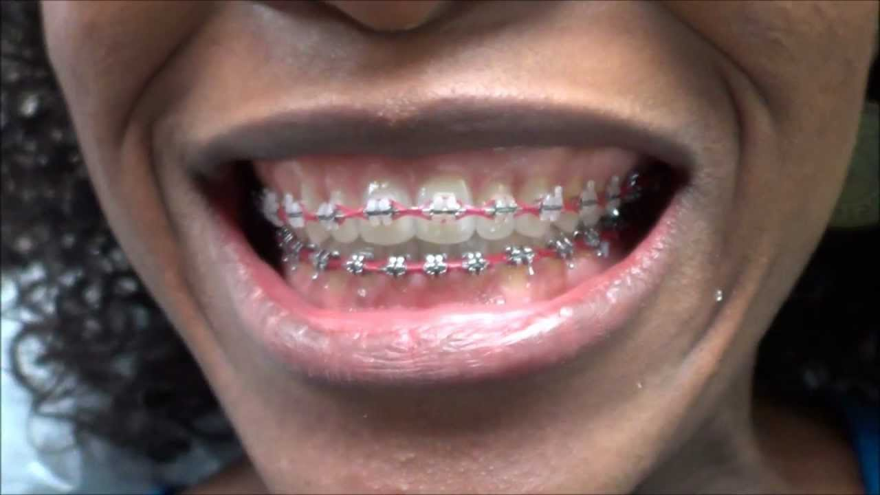 94 Power Chain Replacement On My Braces At The