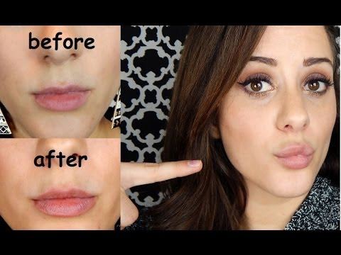 My Juvederm Lip Injection Experience