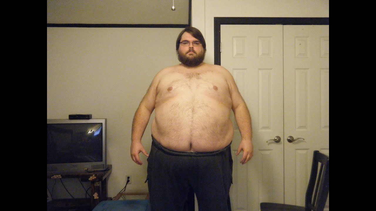 Morbidly Obese Man Naked