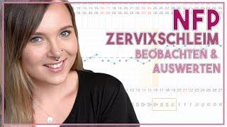 ???? Verhütung ohne Hormone - so funktioniert NFP  - Zervixschleim beobachten & auswerten ✏️