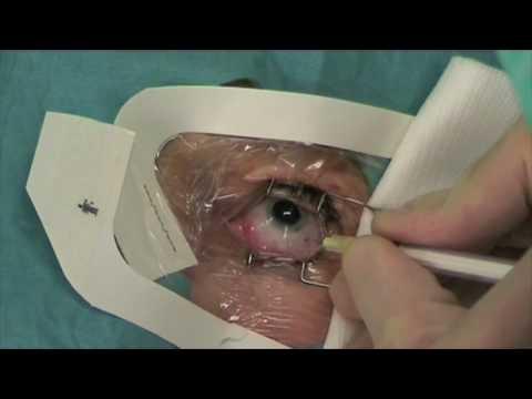 steroids cataract surgery