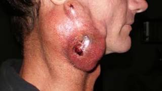 Throat Cancer; Normal Throat Vs Cancer Throat - What Causes Throat Cancer?