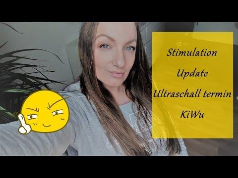 künstliche Befruchtung/Stimulation/ Ultraschall Termin