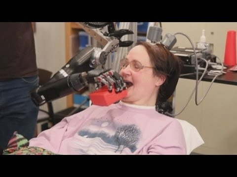 Amazing technology: Mind-controlled robotic arm