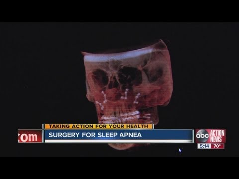 Surgery to correct overbite may be cure for sleep apnea for some