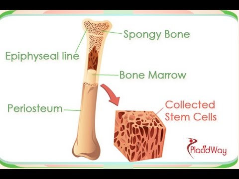 Bone Marrow Transplant in India: Treatments and Procedures