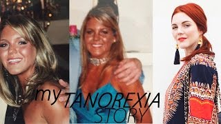 My Tanorexia Story | How I Got Confident Being Pale