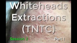 Whiteheads Extraction (TNTC) - Session 2: Part 1 of 3