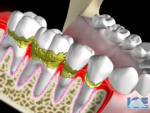 Periodontist in Ann Arbor, MI Shares Gum Disease at Michigan Implants & Periodontics