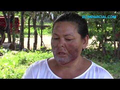 Mujer afectada por contaminación del Río Sonora