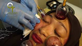 Hijama Cupping For Face