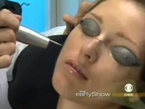 Acne Treatments in NYC by Dr. Paul Frank