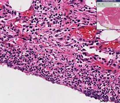Histopathology Heart  --Pericarditis, bacterial