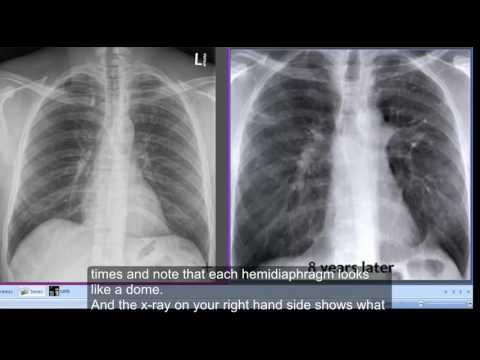 Chest x-ray Tenting of hemidiaphragms & Hemidiaphragm on Wikinow | News Videos u0026 Facts