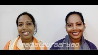 Gummy Smile Treatment in Bangladesh (Done By Dr. Abdullah Al Masud)