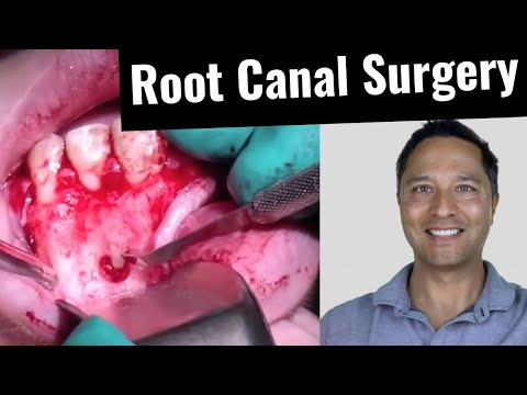 Root Canal Surgery (Apicoectomy #10) Part 2/2