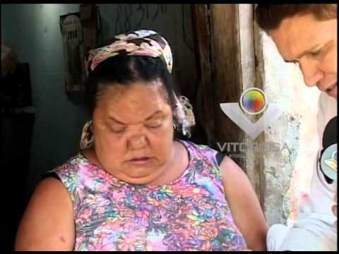 Mulher com diabetes reclama da falta de medicamentos