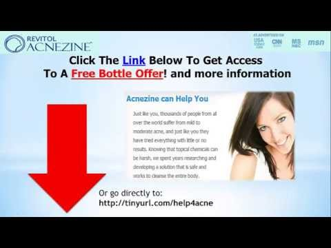 """""""Best Acne Treatment Review"""" 