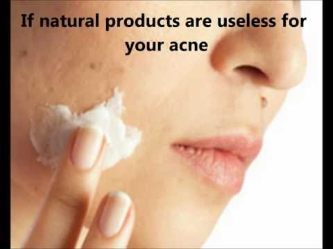 Retinoids for acne : effectiveness and side effects