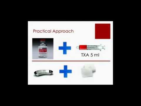 Tranexamic Acid in the Emergency Department