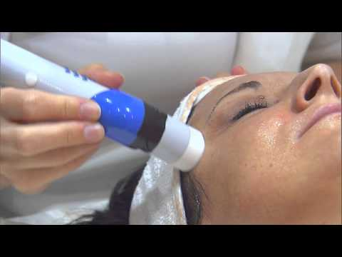 Micro-needling (Dermaroller) treatment for Acne Scar removal
