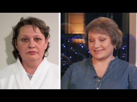 Вильцина Ирина - отзыв о подтяжке лица методикой Space Lifting