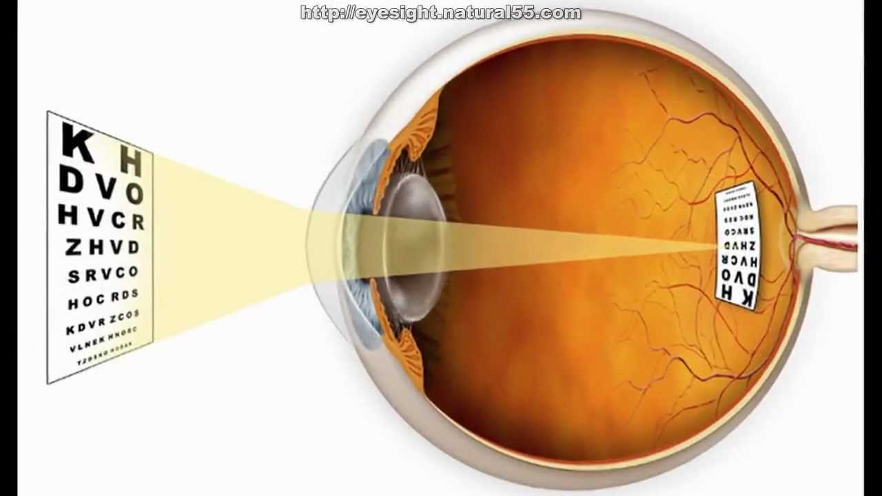 How To Improve Your Vision Without Wearing Glasses