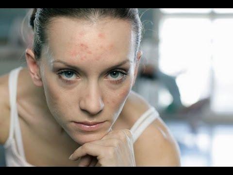 DermTV - Preventing Acne Breakouts in Adults [DermTV.com Epi #129]