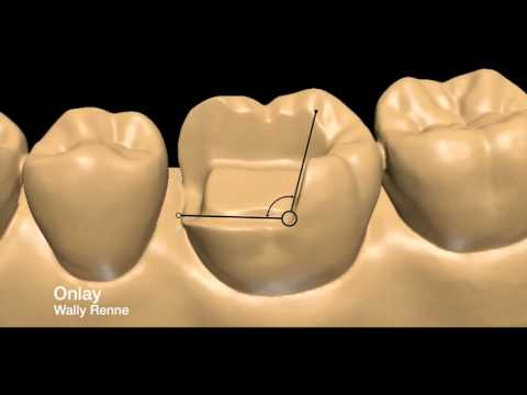 Posterior tooth preparations inlay. onlay. crownlay and crown