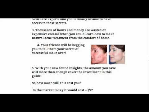Acne Gone Naturally - Fight Acne Naturally With Home Remedies