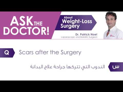Dr. Patrick Answers - Scars after the Surgery