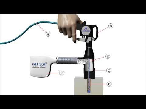 Funcionamento da Pistola de AR - Vácuo - How it work Deep hole Vacuum gun