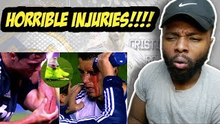 Cristiano Ronaldo ► Top 5 Horror Injuries ever in his Career | HD Reaction